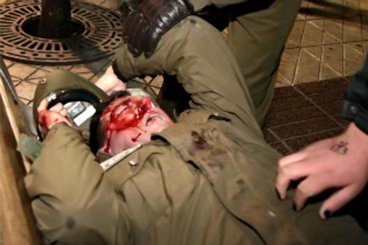 Carabinero atacado y herido en Chile, Anarquismo, Comunismo, Golpe de Estado